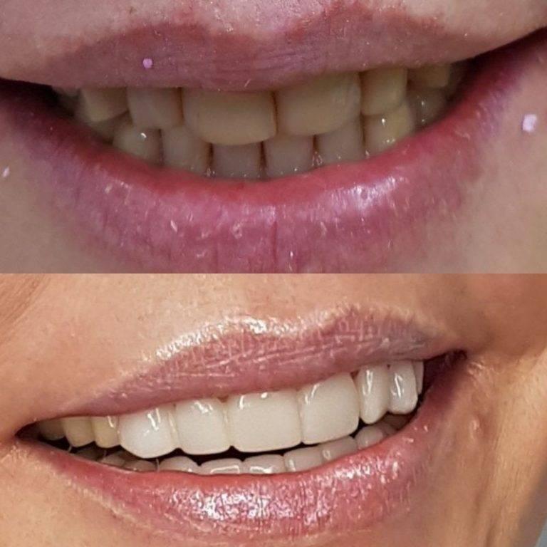 Зубные люминиры: голливудская улыбка вам обеспечена, обзор цен