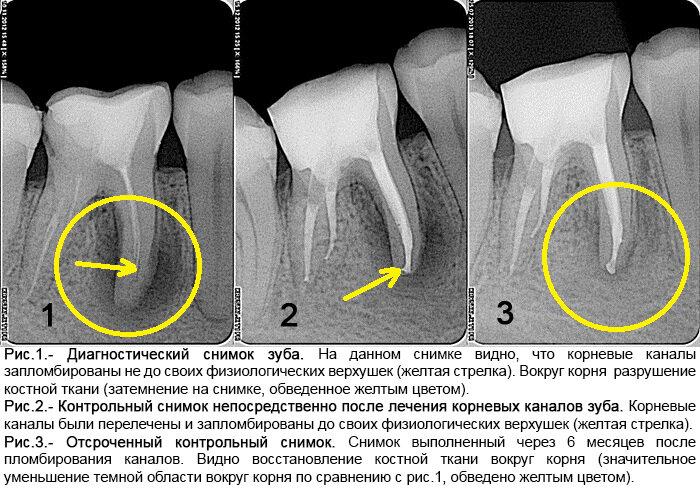 Особенности периодонтита зуба: симптомы и причины, классификация, методы лечения и фото