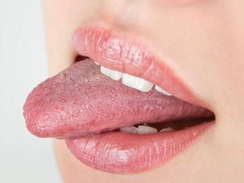 Почему от курения на языке появляется налет