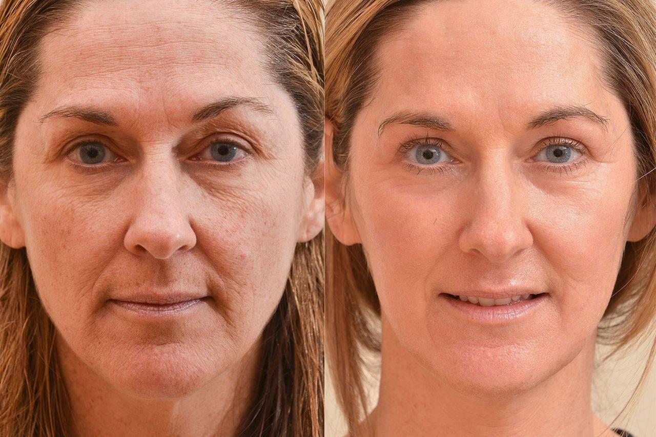 Плазмолифтинг для волос: что это такое, особенности и главные секреты красоты