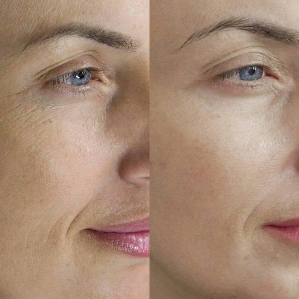 Мезотерапия лица: преимущества, фото до и после процедуры