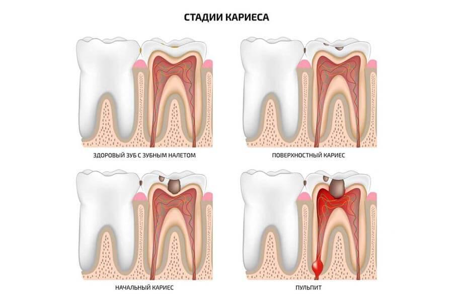 Зубная боль при беременности — что делать. чем снять зубную боль при беременности — таблетки, народные средства. что можно от зубной боли 1,2,3 триместр