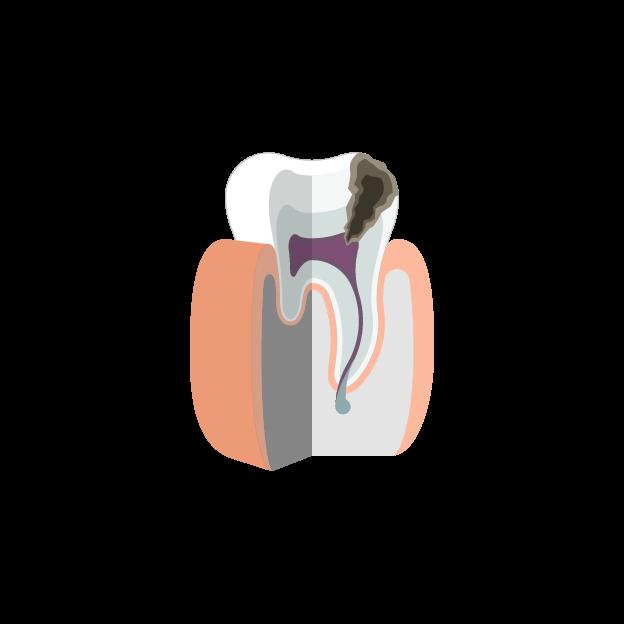 Пульпит и периодонтит зуба