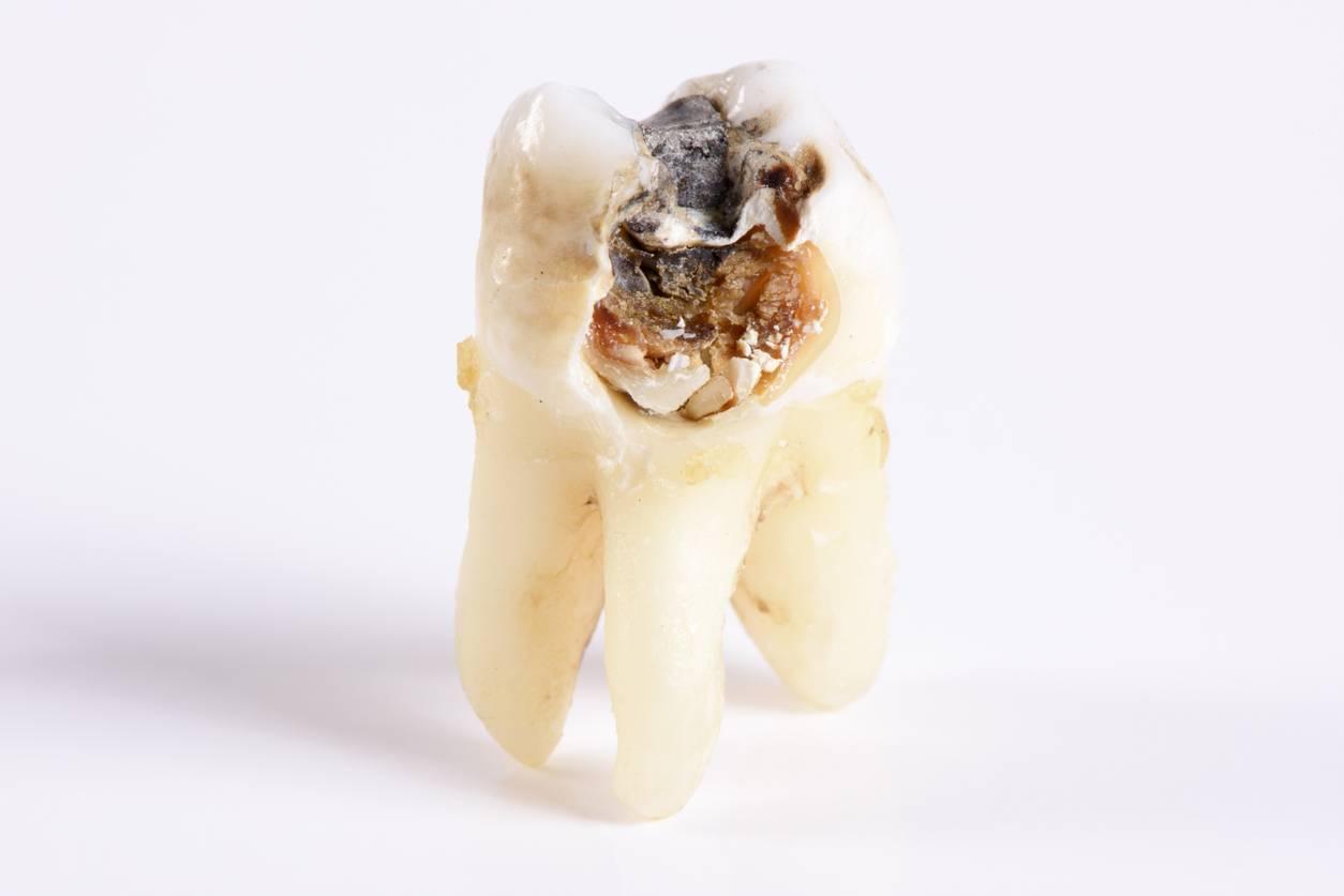 Узнаем, почему гниют зубы