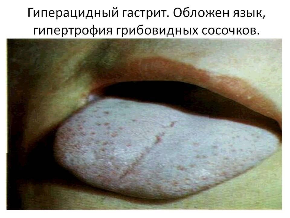 Какой цвет языка при заболеваниях. причины белого, желтого, зеленого, темного, коричневого налета