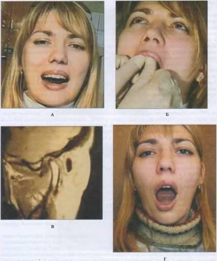 Что делать при вывихе челюсти: первая помощь и способы вправления