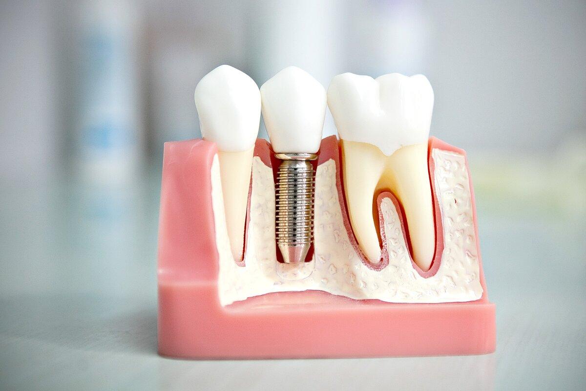 Избавиться от неудобной вставной челюсти поможет полная имплантация зубов