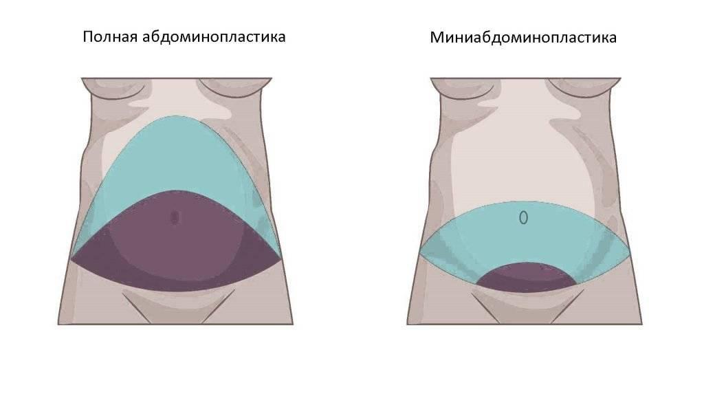 Приумбиликальная миниабдоминопластика: особенности операции