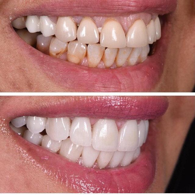 Больно ли лечить передние верхние зубы с уколом