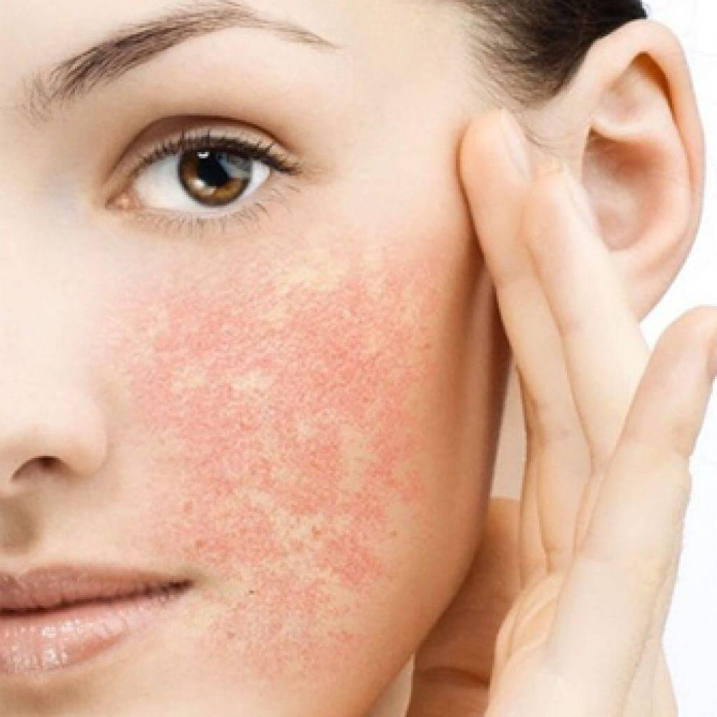 Аллергия на гиалуроновую кислоту: симптомы и лечение