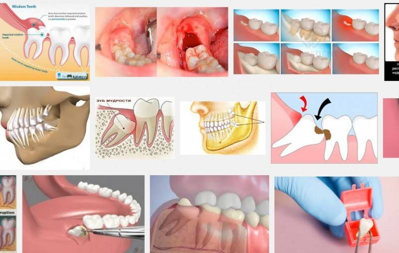 Можно ли удалять зуб во время месячных