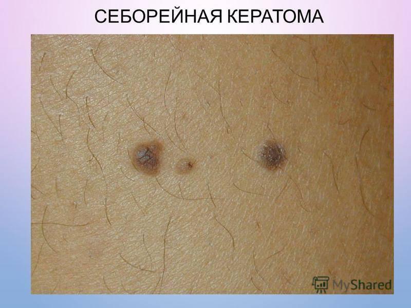 Новообразования на коже: доброкачественные, злокачественные, предраковые, симптомы и методы удаления