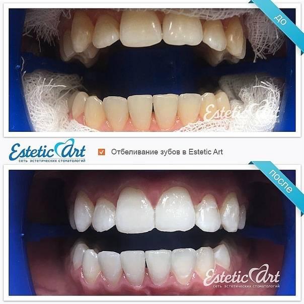 Как заточить клыки без вреда для зубов