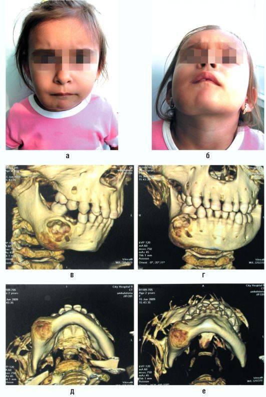 Саркома челюсти