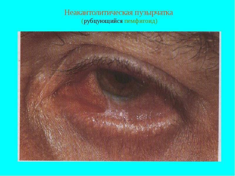 Буллезный дерматит: причины возникновения и основные методы лечения