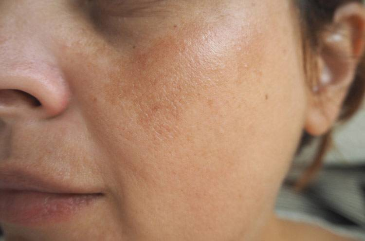 Патологические нарушения пигментации кожи: мелазма и хлоазма