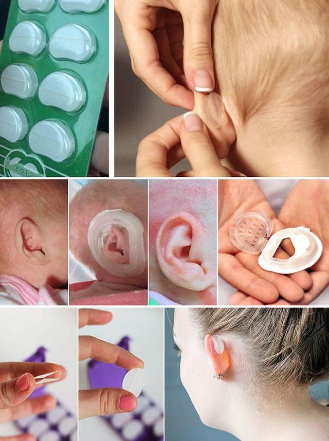 Избавление от лопоухости при помощи корректоров для ушей