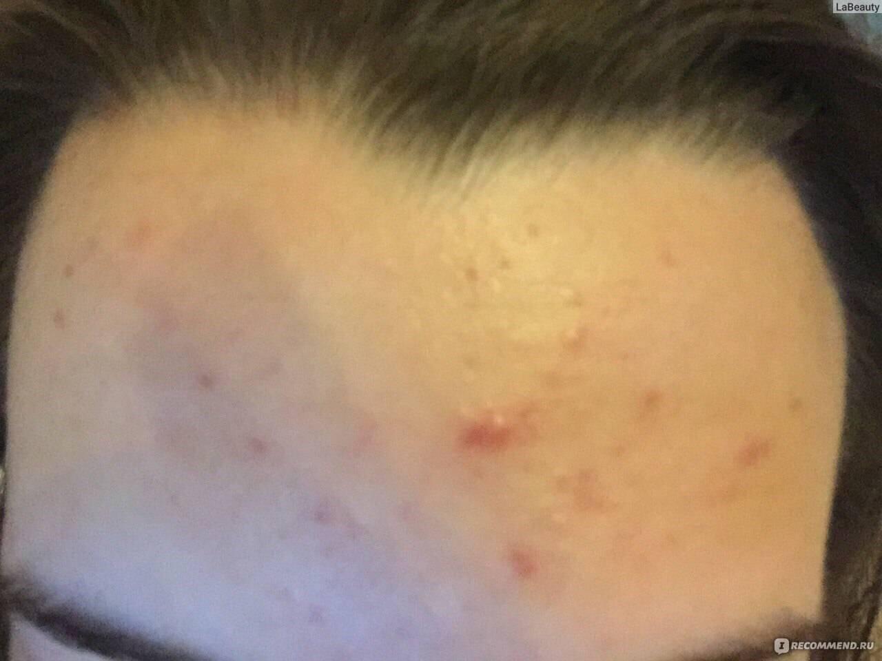Средство от вросших волос: мазь и скраб после эпиляции, спрей и крем для шугаринга, лучшее средство и энзимный пилинг