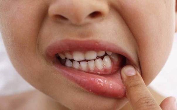 Стоматит у детей: все, что важно знать!