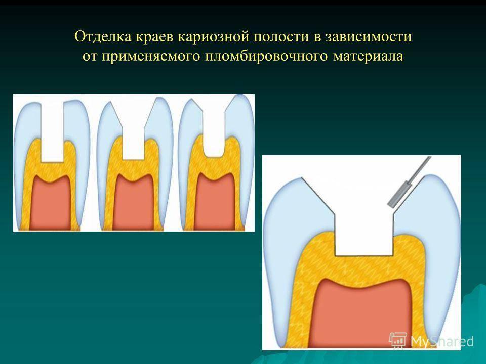 Препарирование кариозных полостей