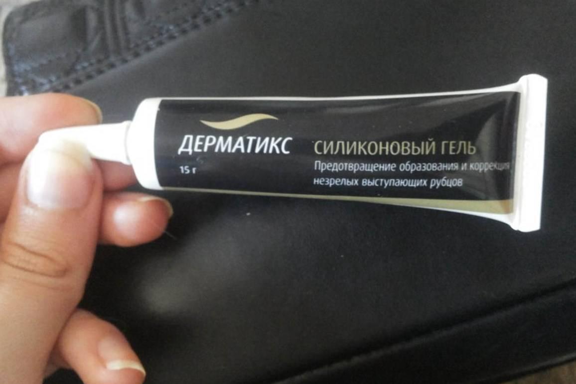 Особенности применения «дерматикса» и «контрактубекса»