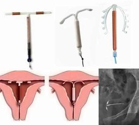 13 доводов за и 9 против: плюсы и минусы внутриматочной спирали