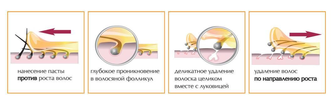 Особенности подготовки и ухода за кожей после электроэпиляции
