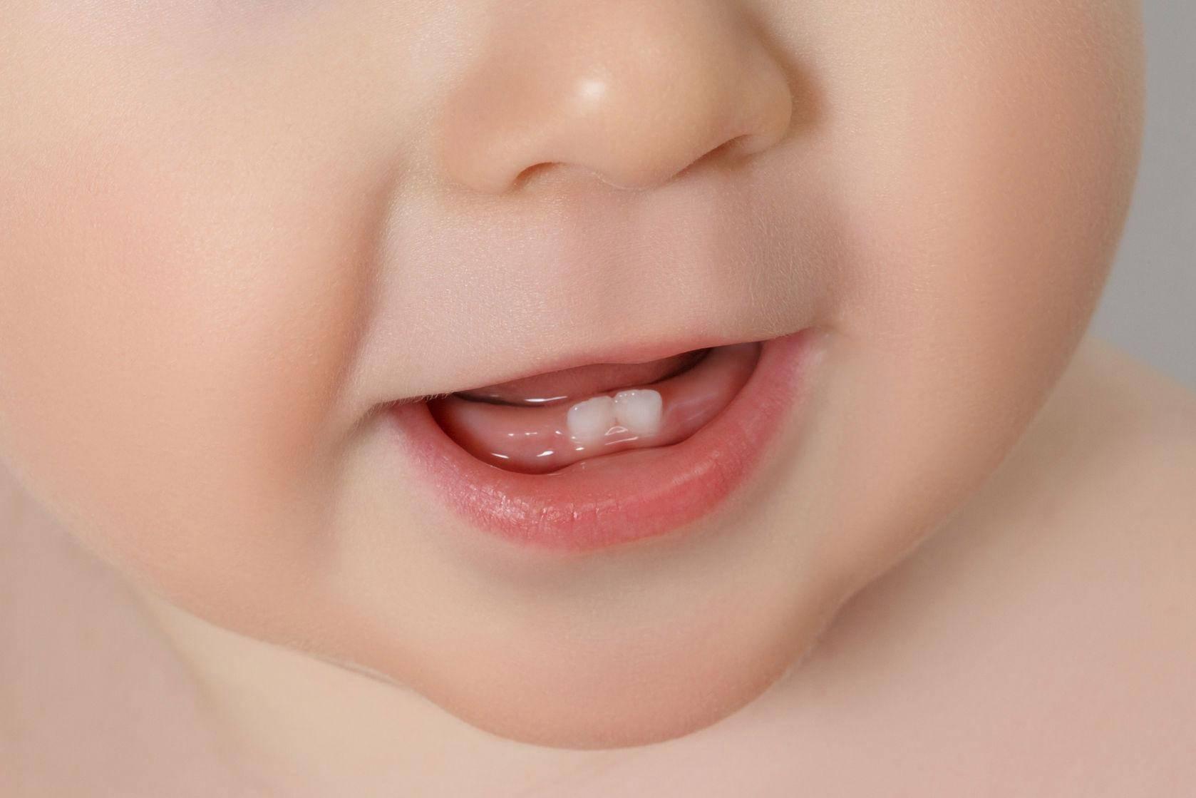 Прорезывание зубов – как помочь ребенку и не вымотаться родителям