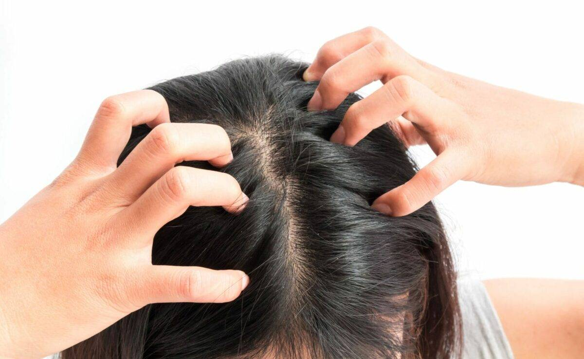 Почему может чесаться чистая кожа головы без вшей?