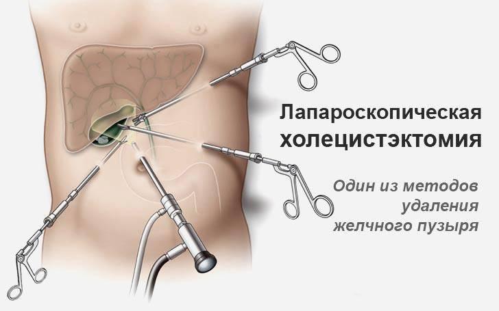Диета После Лапароскопии