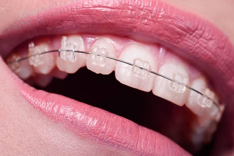 Красивый путь к идеальной улыбке – сапфировые брекеты