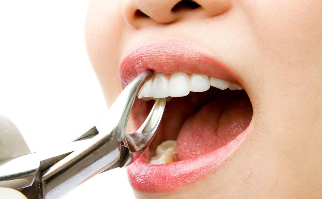 Противопоказания к удалению зуба