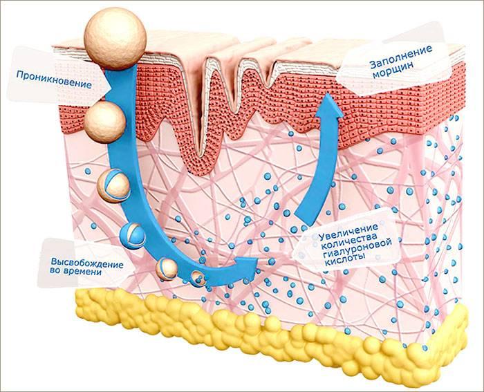 Гиалуронат цинка или инструкция по применению инъекций гиалуроновой кислоты. гиалуроновая кислота с цинком для биоревитализации