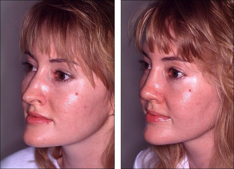 Повторная ринопластика носа и его кончика: фото до и после. через сколько можно делать?