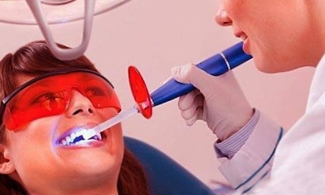 Удаление зубного камня лазером