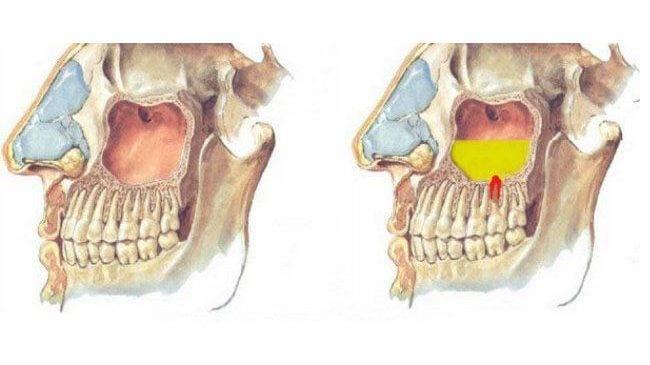 Корень зуба в гайморовой пазухе: что делать?