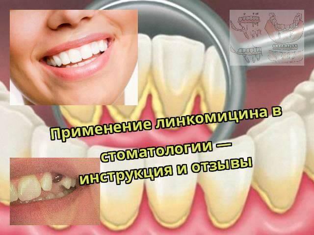 Формы линкомицина и особенности его применения в стоматологии