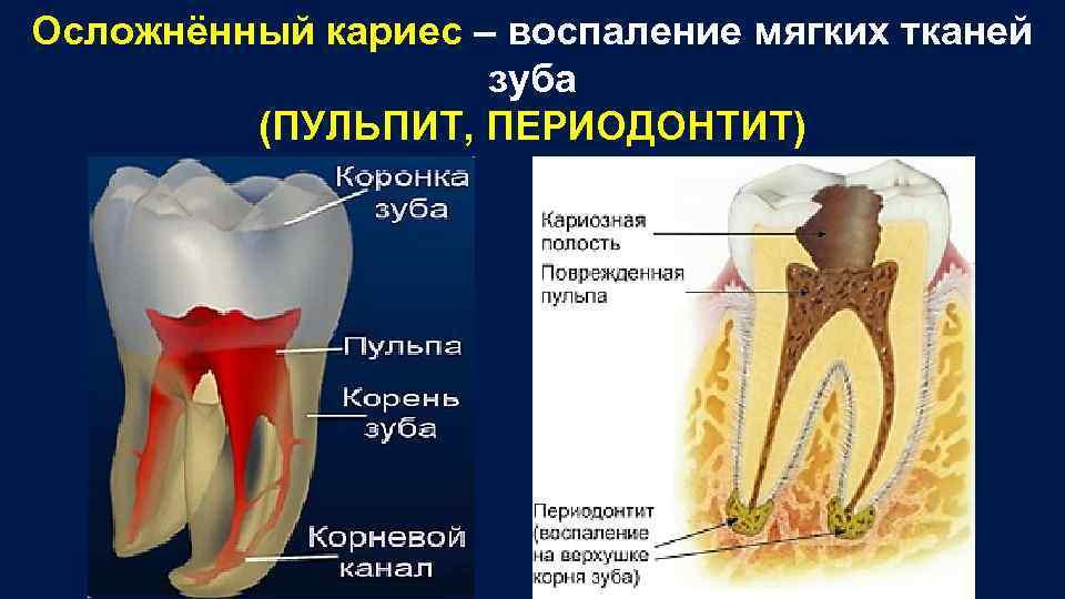 Лечение осложненного кариеса в перми