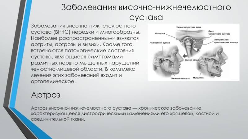 Причины развития, диагностика и лечение артрита височно-нижнечелюстного сустава