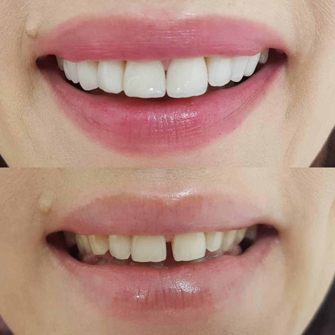 Что такое и как убрать щель между передними зубами