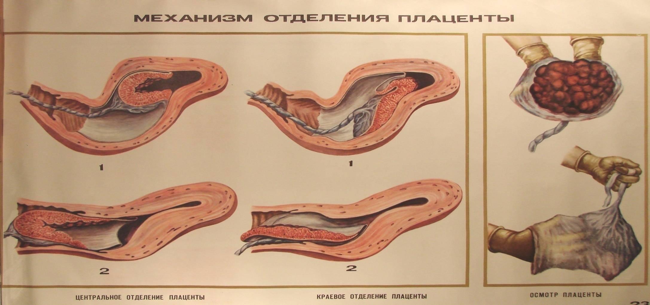 Восстановление месячных после кесарева сечения