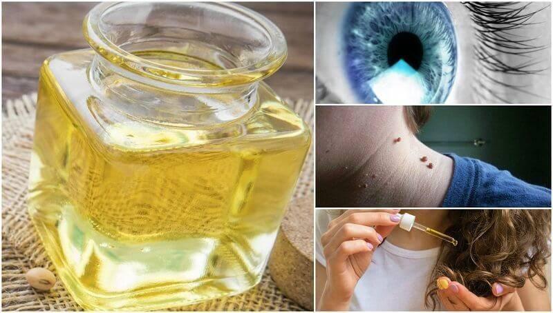 Касторовое масло угревая сыпь