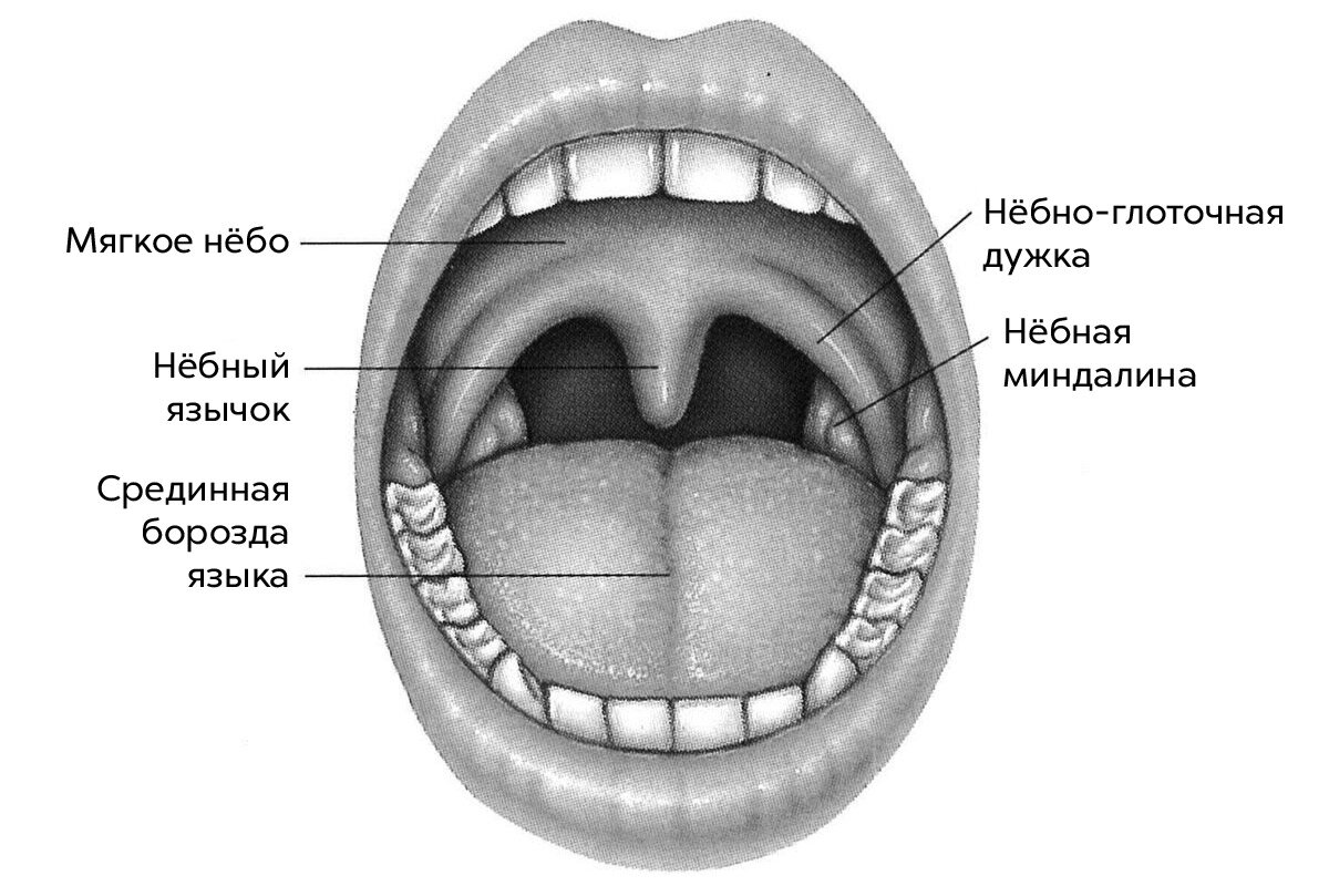 В горле опух язычок