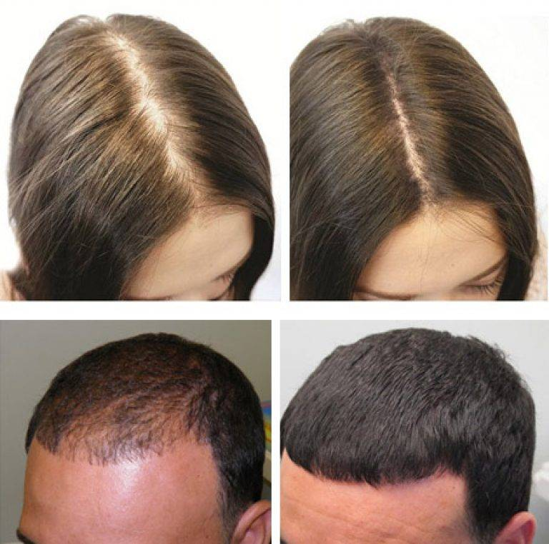 Мезотерапия волос в домашних условиях — мезороллер