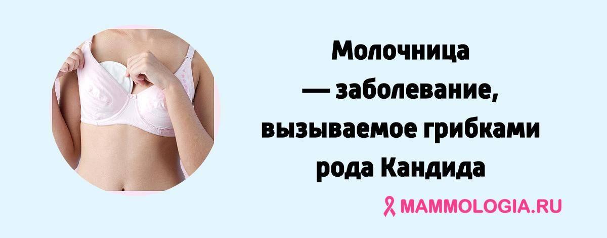 Может ли при молочнице чесаться грудь