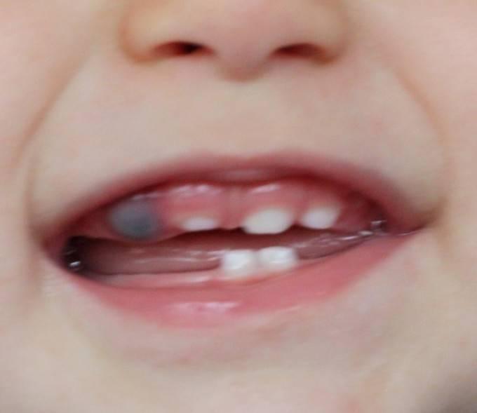 Синяя десна при прорезывании зубов у ребенка что делать