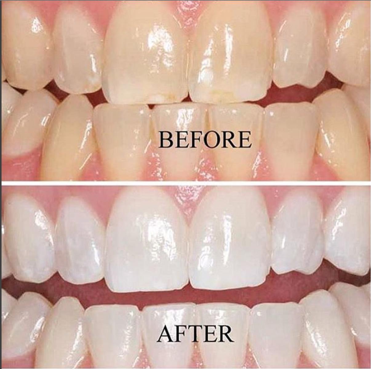 Opalescence - лучшая система для отбеливания зубов?