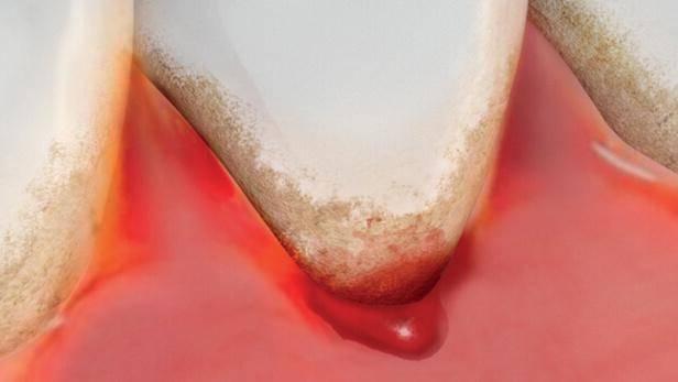 Почему кровоточат дёсна и ощущается неприятный запах изо рта