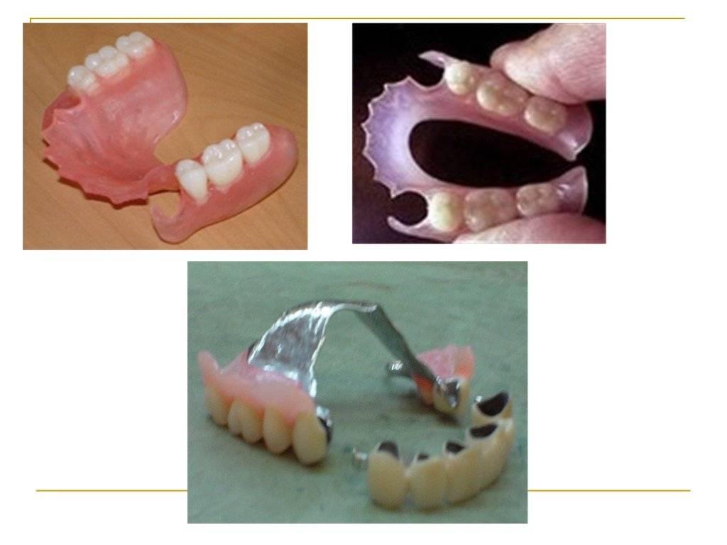 Виды протезирования зубов - плюсы и минусы, цена зубных протезов