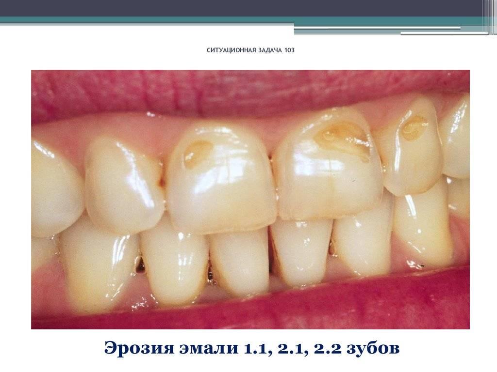 Флюороз зубов — причины и лечение